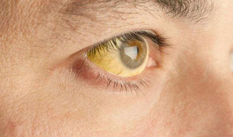Best home remedies for jaundice